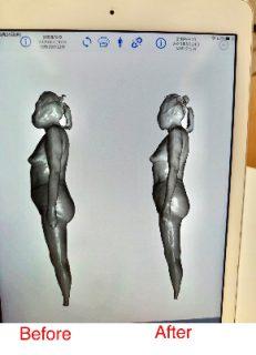 「1年間カイロとエステに通って全く痩せず、コンプレックスしかありませんでした。」