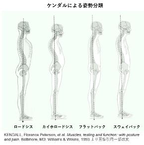 横から見た場合の背骨歪みは4タイプ!骨盤矯正と肋骨の歪み改善に一番大切なポイントは〇〇